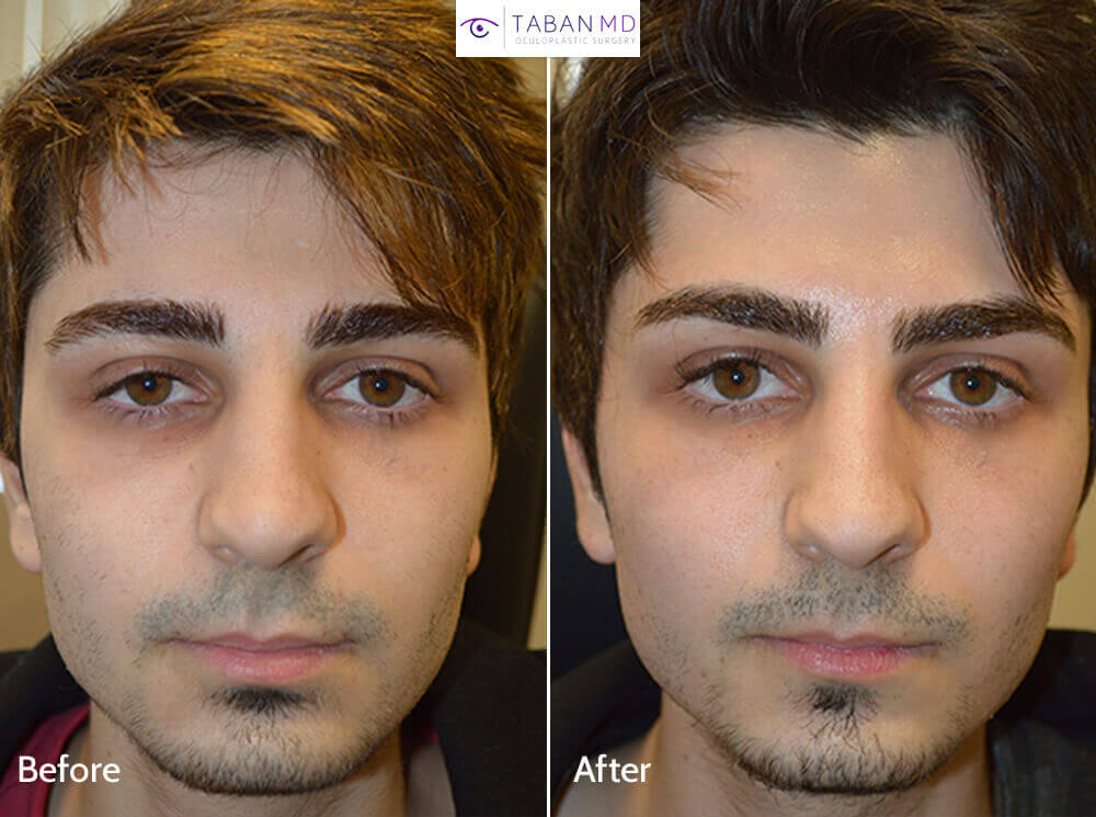 22 year old male, from Toronto Canada, complained of eye asymmetry with right eye smaller due to droopy right upper eyelid (ptosis). He underwent scarless internal right upper eyelid ptosis surgery. Before and 2 months after droopy eyelid ptosis correction photos are shown.
