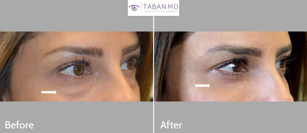 Before and 2 YEARS after lower blepharoplasty (transconjunctival technique with fat repositioning) in this beautiful young woman who had under eye fat bags and hollowness. Note long lasting natural results of the eyelid surgery.