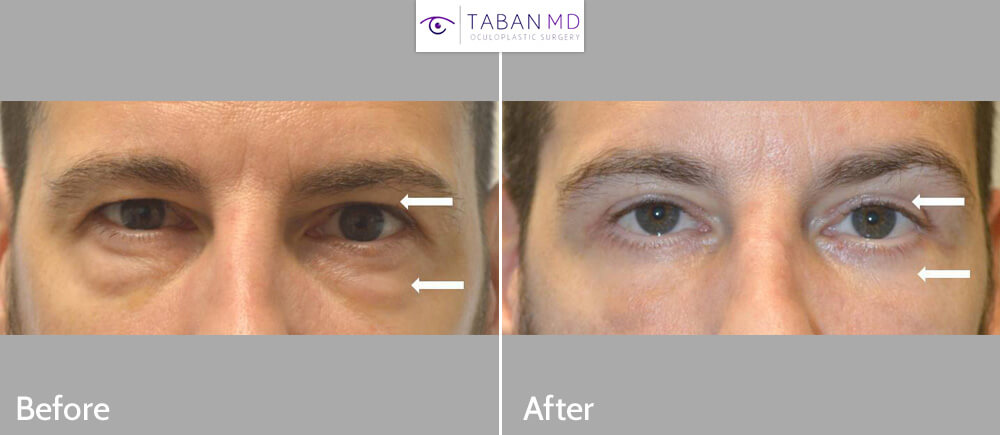 45 year old man, looking tired and older, underwent male upper blepharoplasty and lower blepharoplasty (transconjunctival technique with eye fat bags repositioning, skin pinch), to look more refreshed with natural results.