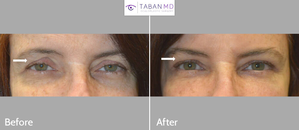 Middle age woman, looking tired, underwent upper blepharoplasty, droopy upper eyelid ptosis surgery, and upper eyelid filler injection. Before and 1 month after eyelid surgery photos are shown. Note more youthful eye appearance.