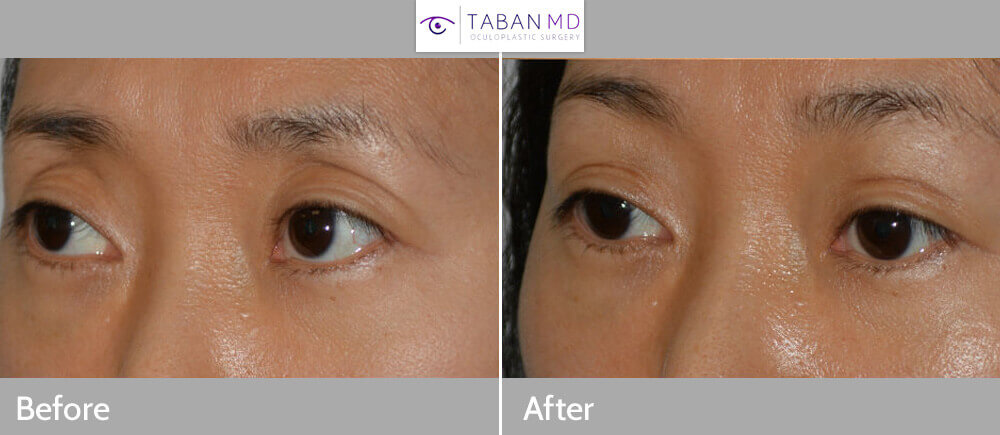Before (left), prior aggressive upper blepharoplasty resulting in hollow upper eyelids, and 2 months after (right) filler injection in upper eyelid-brow area.