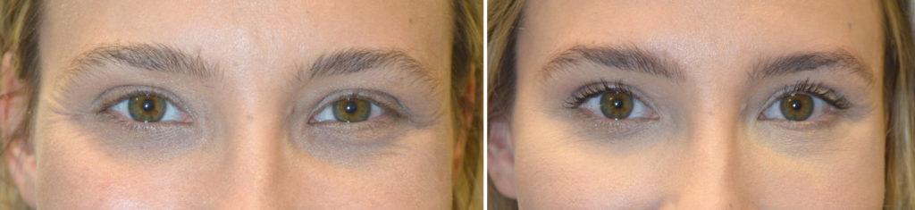Eye Asymmetry Beverly Hills Eyelid botox injection