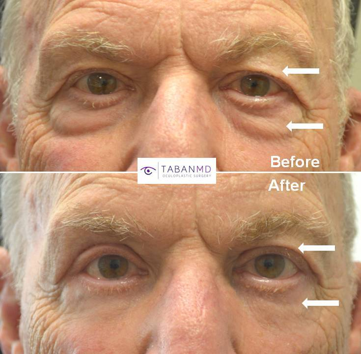 70+ year old male, complained of saggy upper eyelids and under eye bags, looking tired and older, underwent cosmetic male upper blepharoplasty and transconjunctival lower blepharoplasty (transconjunctival technique with eye fat bags repositioning to the tear tough area plus skin pinch), resulting in more rested youthful eye appearance with natural results.