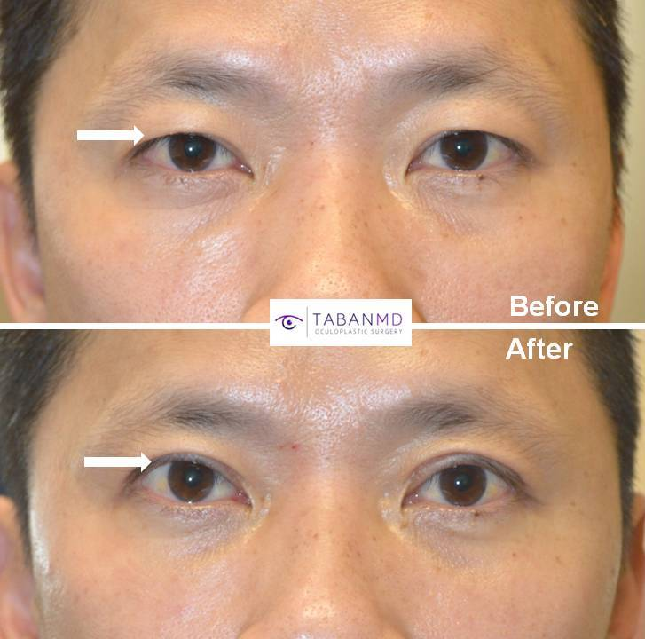 Asian Blepharoplasty Eyelid Crease Surgery in Beverly Hills