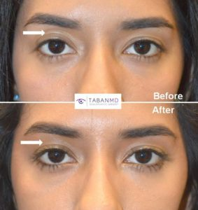 upper eyelid asymmetry beverly hills dr taban