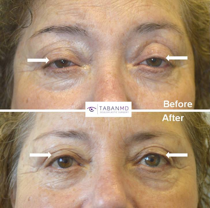 65+ year old female, with history of prior upper blepharoplasty (by another surgeon), complained droopy upper eyelids with trouble keeping eyes open. She underwent scarless internal droopy upper eyelid ptosis surgery, resulting in more natural rested eye appearance. Before and 2 months after eyelid plastic surgery photos are shown.