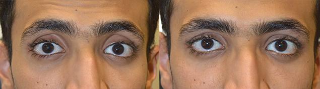 LA Change Eye Shape Procedure