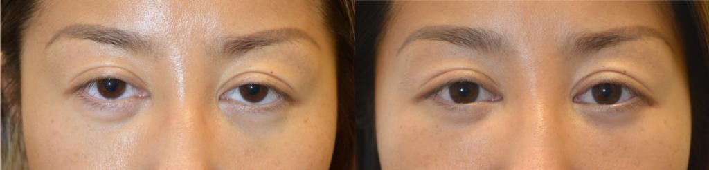 Los Angeles Eye Shape Procedure