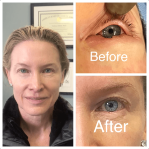 Oculoplastic surgeon in Beverly Hills California 90212