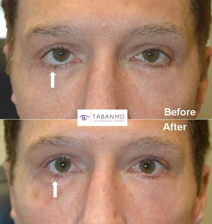 revision lower eyelid retraction surgery beverly hills