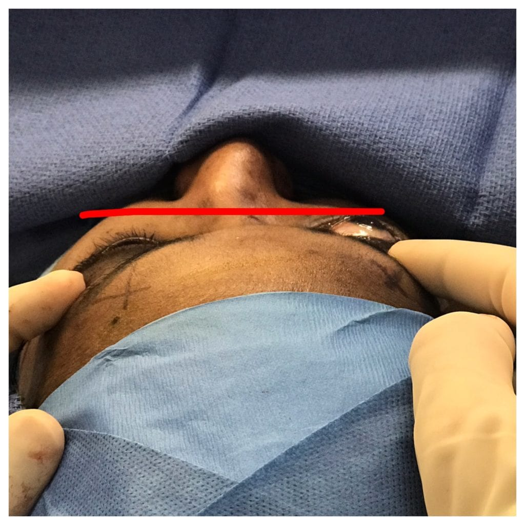 Intraoperative photo showing immediately after scarless left orbital decompression surgery, contrasted with yet untreated bulging right eye.