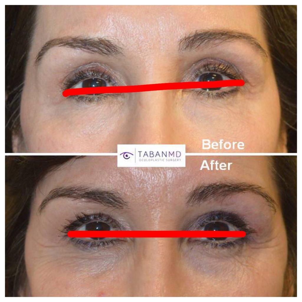 Eye Asymmetry Beverly Hills Surgeon;