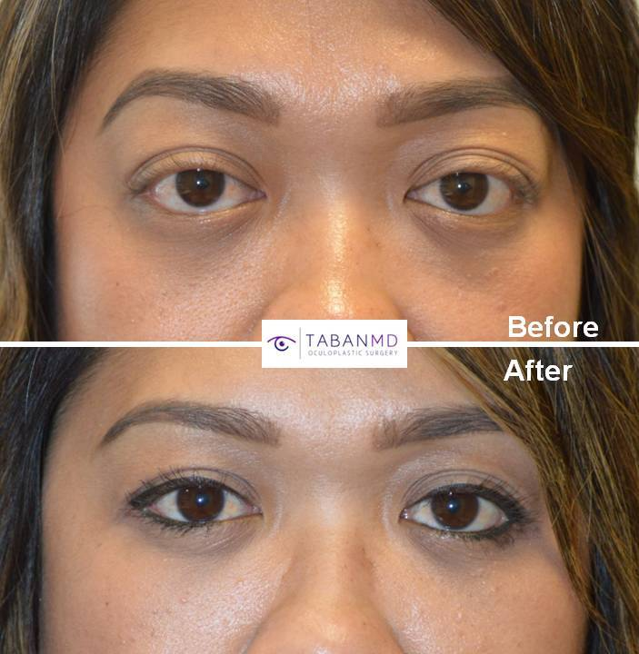 Young Asian female, with inherited bulging eyes, underwent scarless orbital decompression (bulging eye) surgery.