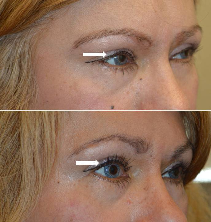 56 year old female before and after Eylelid Ptosis Surgery