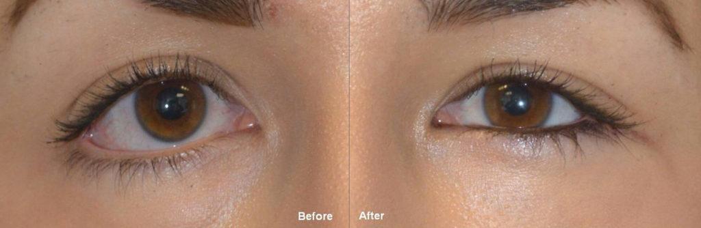 Eye Shape Surgery Beverly Hills