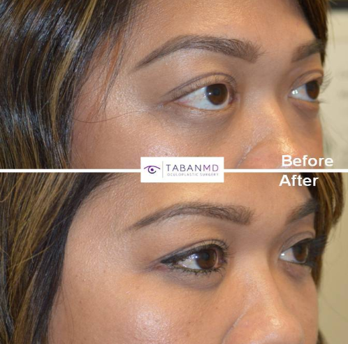 Almond Eye Surgery Costs | TabanMD Oculoplastic Surgery