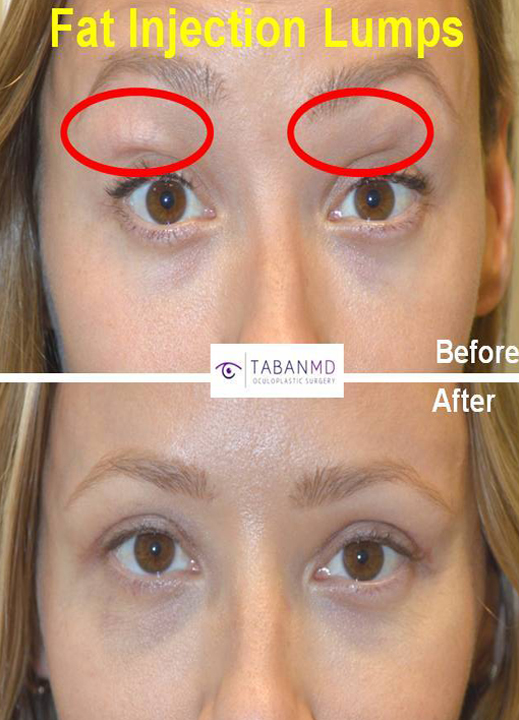 Young mother and model, underwent upper eyelid fat lumps granulomas removal (plus upper blepharoplasty) that had resulted from prior fat injection (fat transfer) by another surgeon. Before and 6 weeks after revision eyelid plastic surgery photos are shown.
