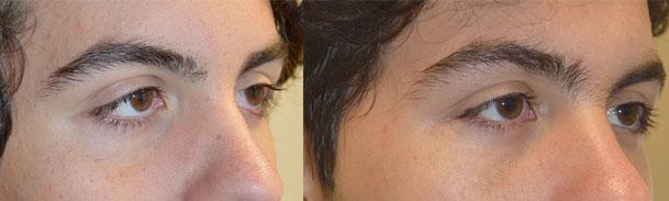upper eyelid ptosis surgery