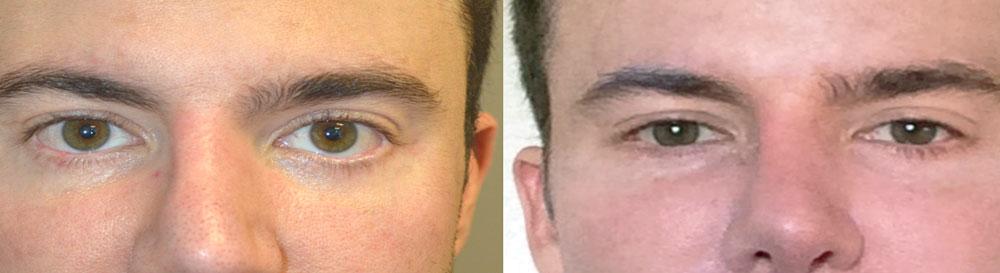 lower eyelid retraction surgery