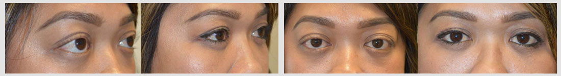 orbital decompression lower eyelid retraction surgery