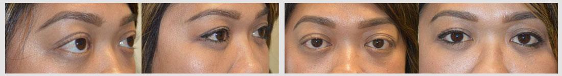 orbital decompression lower eyelid retraction surgery