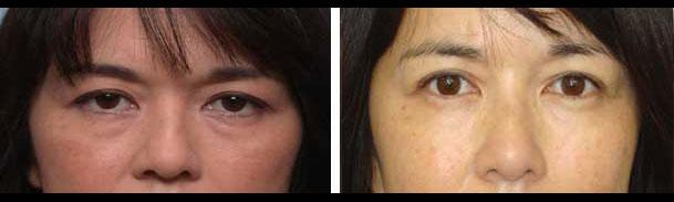 Korean Woman Eye Fold Treatment in LA