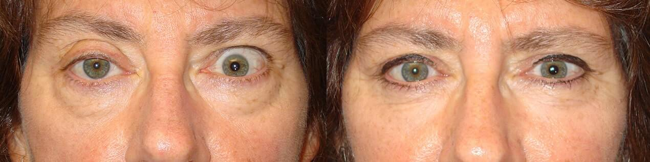 Before obvious eye asymmetry due to left upper eyelid retraction and right upper eyelid ptosis. After left upper eyelid retraction surgery and right upper eyelid ptosis surgery with improved symmetry.
