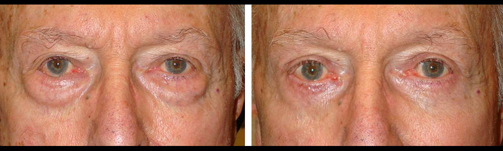 Before (left) and 2 months after (right) transconjunctival lower blepharoplasty with fat removal using hidden inside eyelid incision that did not require stitches.