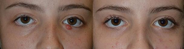 Eyelid Pus Treatment by LA Oculoplastic Surgeon
