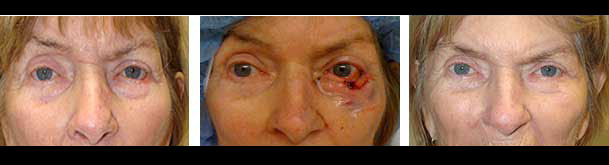 Before & After Mohs Resection in LA