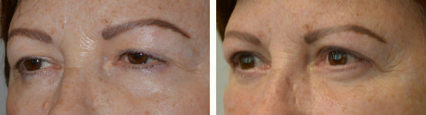 Before (left) and 3 months after (right) Quad-Blepharoplasty (with fat transposition), ptosis surgery, and Braiserre brow support.