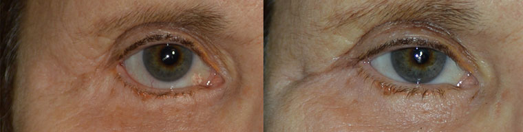 revision cosmetic surgery natural almond shape eye appearance. (later she would also benefit from ptosis surgery and brow lift).