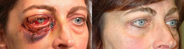 Before (left) and 3 months after (right) of multiple eyelid lacerations repair.