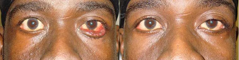 Beverly hills lower eyelid ectropion surgery