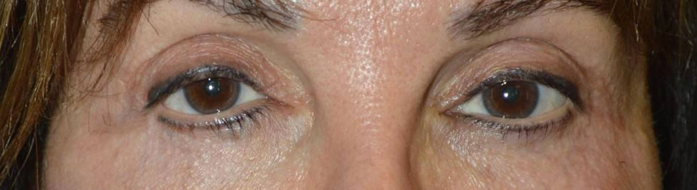 Los Angeles Uneven Lower Eyelid positions
