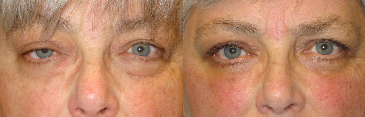 Before eye asymmetry due to right upper eyelid ptosis. After right upper eyelid ptosis repair with improved eye symmetry.
