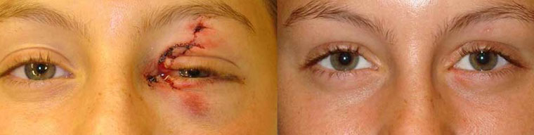 Before (left) and 3 months after (right) eyelid, eyebrow and canalicular laceration repair.