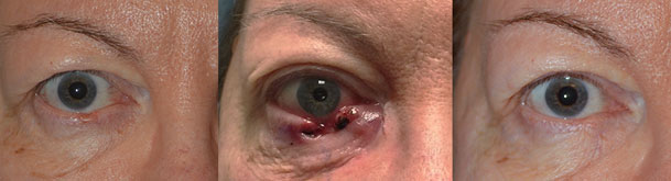 Eyelid Surgery for Basal Cell Carcinoma in LA