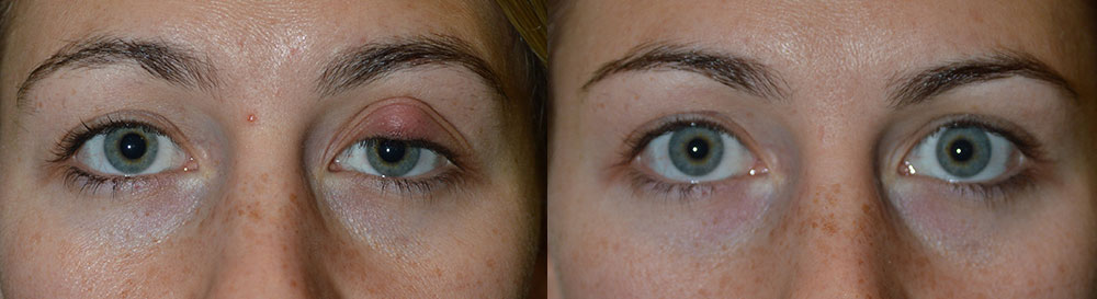 Eyelid Stye Excision Before & After