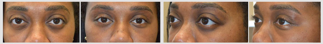 beverly hills cosmetic orbital decompression lower eyelid retraction surgery