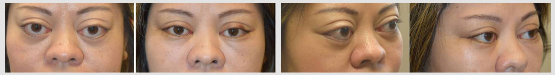 lower eyelid retraction retraction surgery