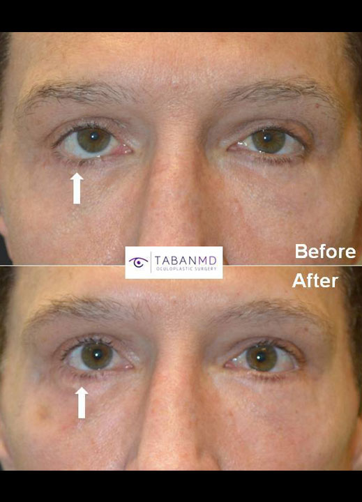 Revisional Eyelid Surgeon Beverly Hills