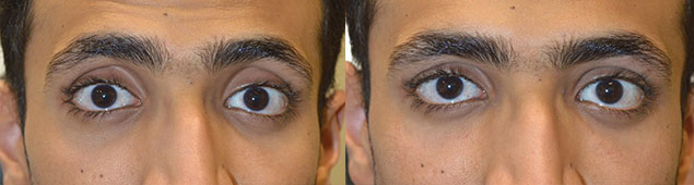 Young man, from Saudi Arabia, complained of sunken hollow eyes and dark circles. He underwent upper eyelid filler and under eye filler injection. Before and immediately after eyelid filler injection photos are shown. Note the improved change in eye shape with less sunken eye appearance.