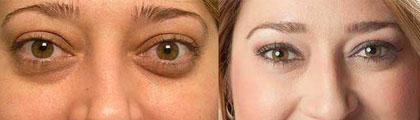 Before (left) and after (right) bulging eye treatment.