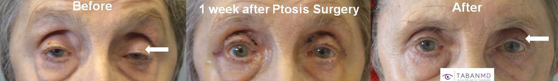 86-year-old female, with severe age-related droopy upper eyelids underwent functional droopy upper eyelid surgery. Before, 1 week after, and 1 month after eyelid ptosis repair photos are shown.