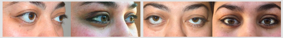 severe bulgy eyes lower eyelid retraction