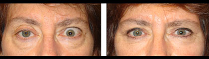 Before (left) and 3 months after (right photo) of right upper eyelid ptosis surgery, left upper eyelid retraction procedureand bilateral lower blepharoplasty.