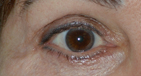 Canthoplasty After Image