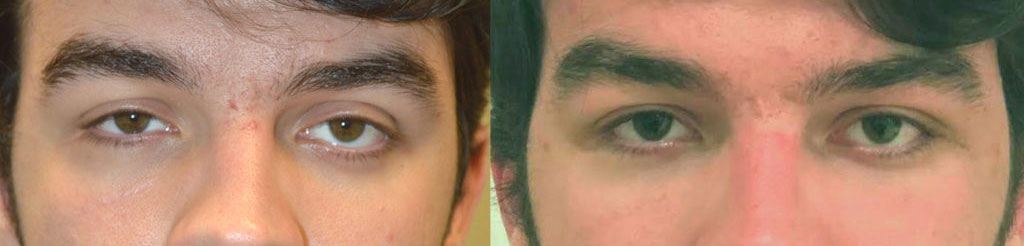 20 year old male, complained of uneven asymmetric eyes. This is due to the sunken right eye from an orbital blow out fracture and congenital left lower eyelid retraction. He already had right orbital fracture repair by another surgeon with persistent enophthalmos (sunken eye). He underwent left orbital decompression plus left lower eyelid retraction surgery. He also underwent droopy upper eyelid ptosis surgery on both eyes. Before and 6 weeks after eye plastic surgery photos are shown. Note improved eye symmetry and youthful eyes.