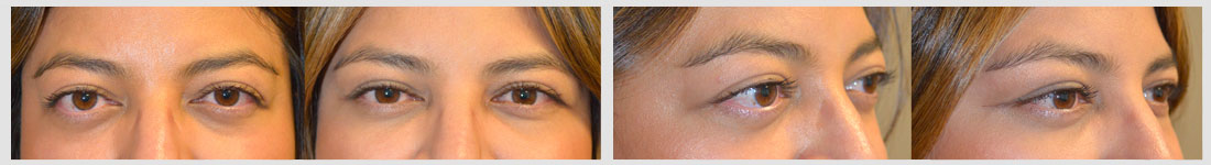 34 year old female, with bulging eyes from Graves disease, underwent combined orbital decompression surgery plus lower eyelid retraction surgery plus orbital rim (tear trough) implant placement. Before and 6 weeks after surgery results are shown. You can see her video testimonial on our website testimonial page and her surgical video on specified procedures.